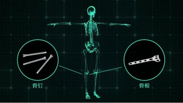 镁梦成真 《宜安科技医用镁骨钉获欧盟CE认证》
